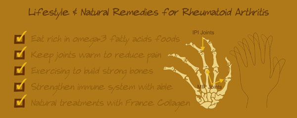 how to treat rheumatoid arthritis, best vitamins and supplements and treatments for psoriatic arthritis, rheum arthritis pain relief treatments for RA tips